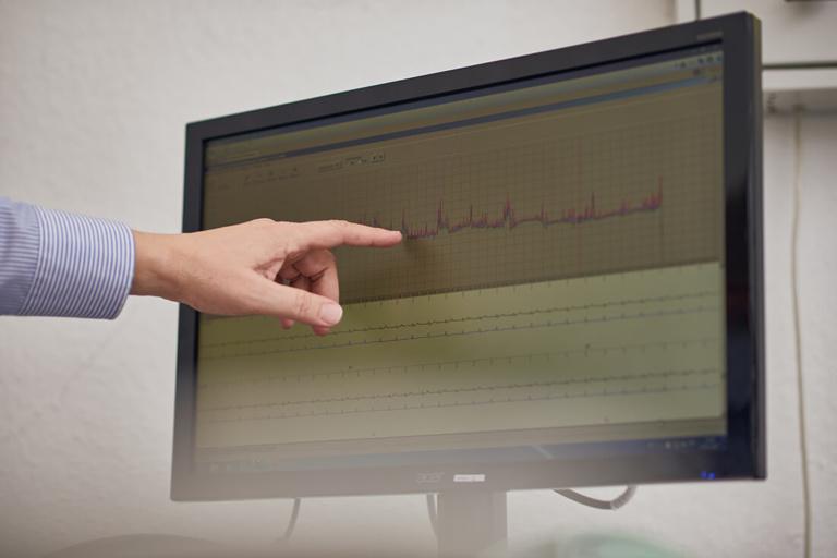 Hausarzt Bad Fallingbostel - Lungenspezialist - Beermann - Leistungen - EKG